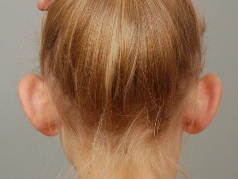 Zadní pohled na odstáté ušní boltce